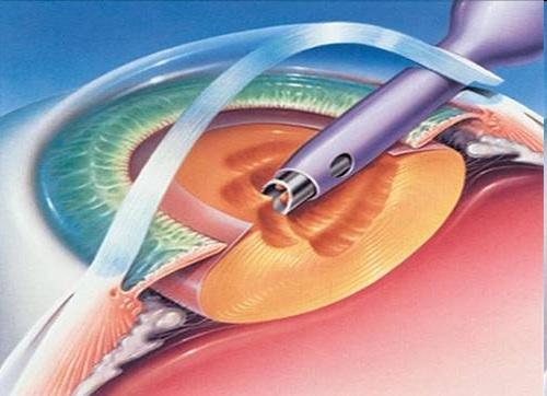 Крие ли рискове операцията за катаракта?