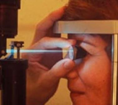"""Какво представлява """"вторичното перде"""" (вторична катаракта)?"""