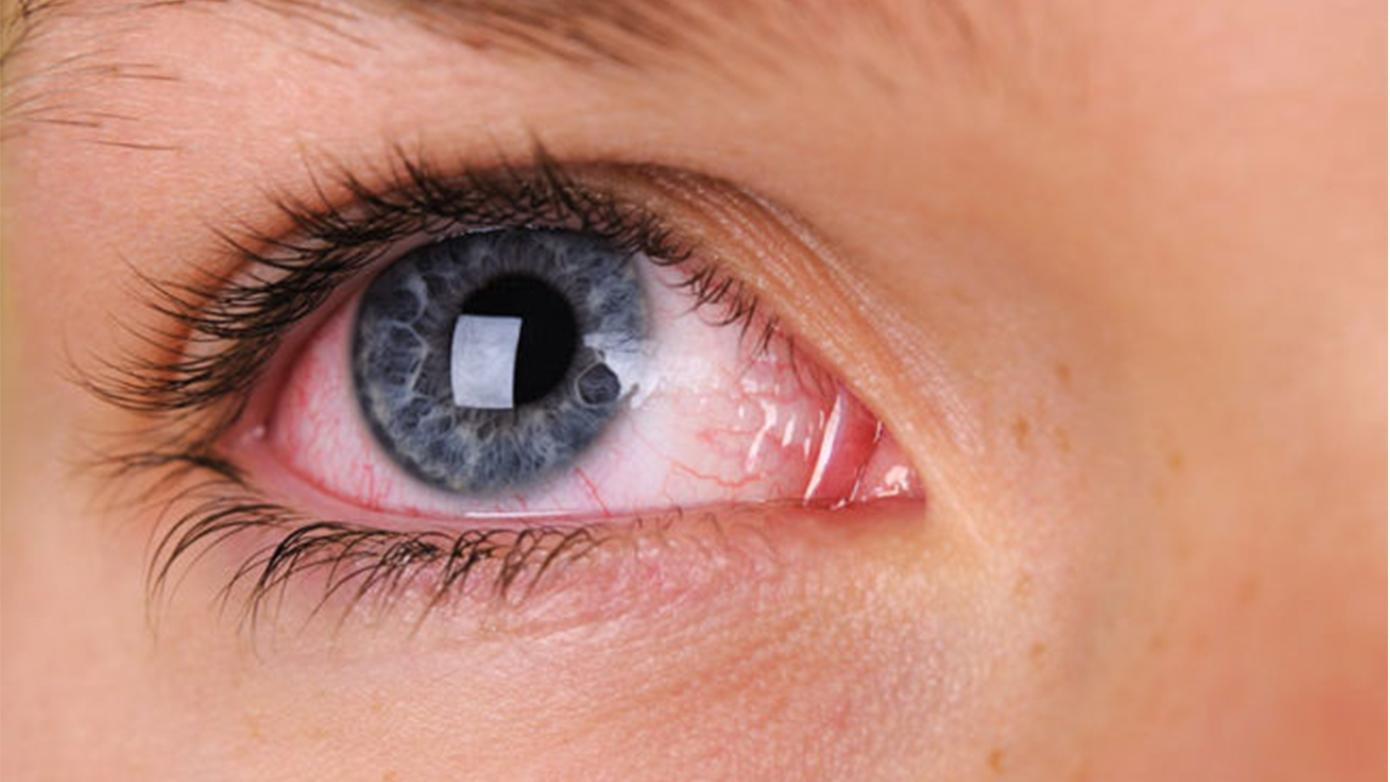 Червеното око е признак на очно заболяване и изисква консулт с очен лекар.
